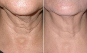 Laser-Skin-Tightening_full
