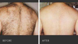 Before and after back laser
