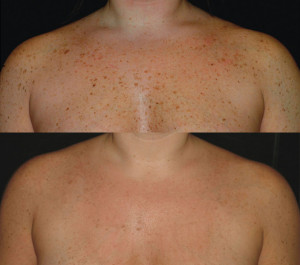 Before and after pigmentation removal