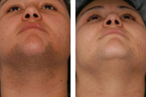 before and after facial hair removal