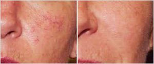 before and after facial redness treatment