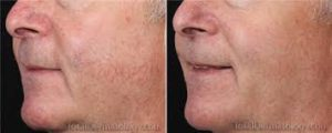 before and after redness treatment