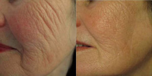 before and after collagen