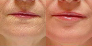 before and after collagen boosting